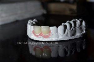 Ortom Dental коронки