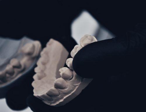 протезирование на имплантах