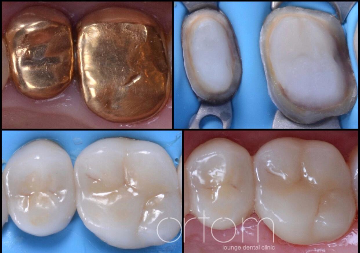 Лечение зуб